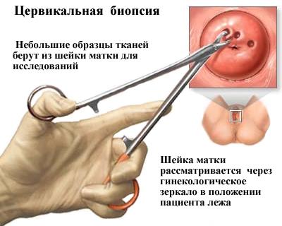 Прицельный метод биопсии шейки матки