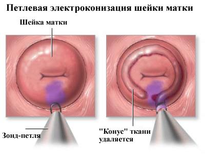 Петлевой  метод биопсии шейки матки