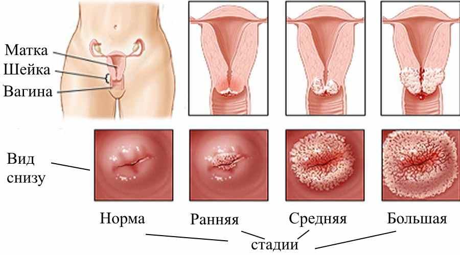 Эрозия шейки матки, миома и эндометриоз как обнаружить и вылечить