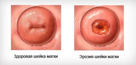 Эрозия шейки матки после родов