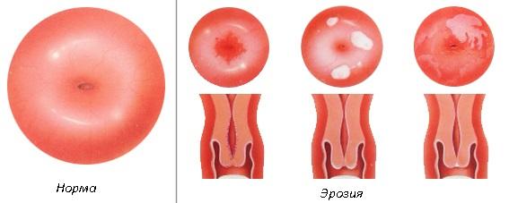 Эффективное лечение эрозии шейки матки медом
