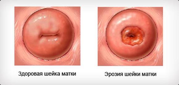 diagnostika-i-lechenie-erozii-shejki-matki2