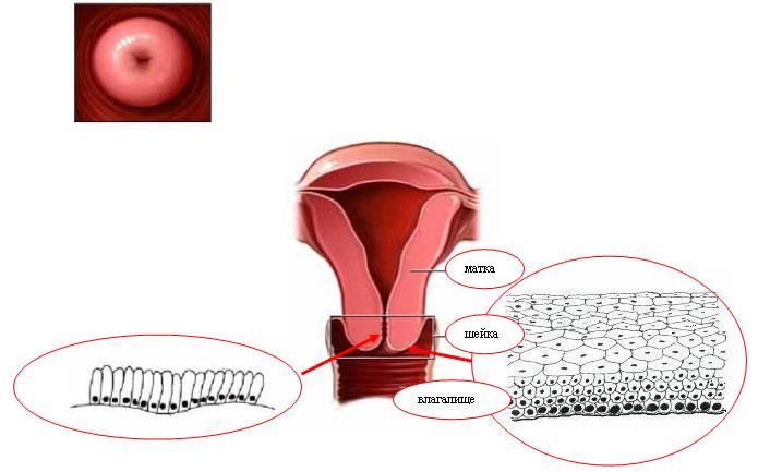 simptomy-i-lechenie-erozii-shejki-matki