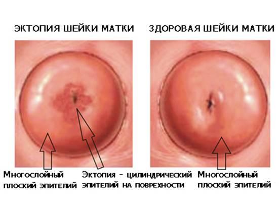 Лечение эрозии шейки матки: на что обратить внимание?