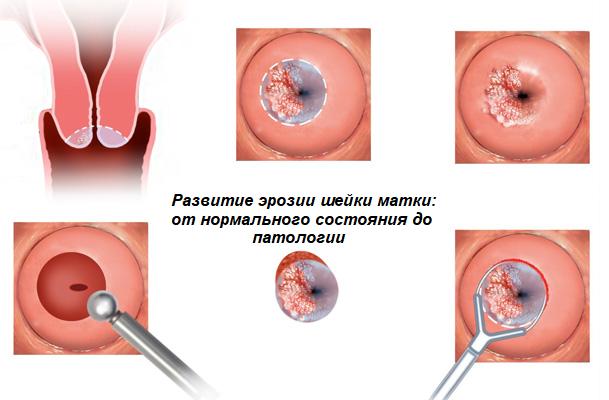 Почему болит эрозия шейки матки? Причины, симптомы и методы лечения эрозии шейки матки?
