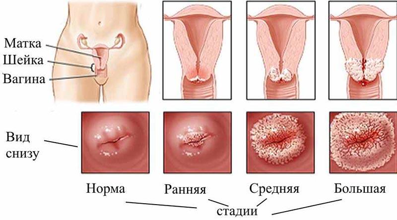 Все об устранении эктопии или эрозии шейки матки посредством лазерного излучения